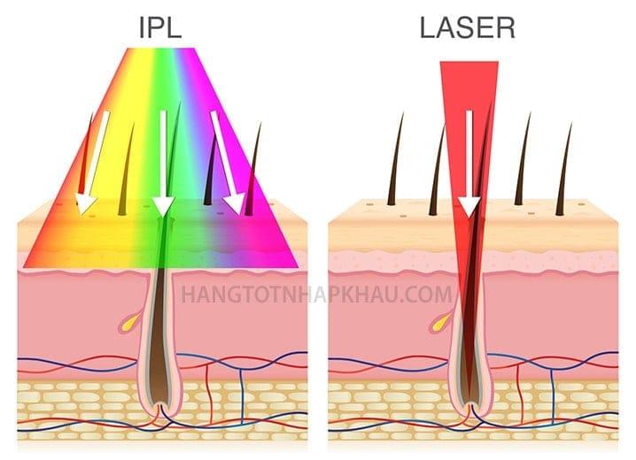 ipl va laser so sanh hangtotnhapkhau com 052001